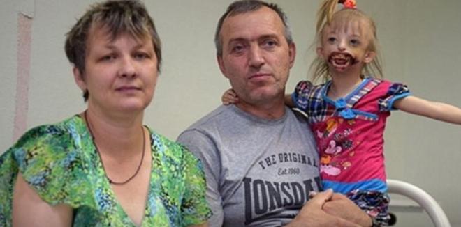 Мать упала в обморок, когда впервые увидела свою дочурку. От них отвернулись все родные…