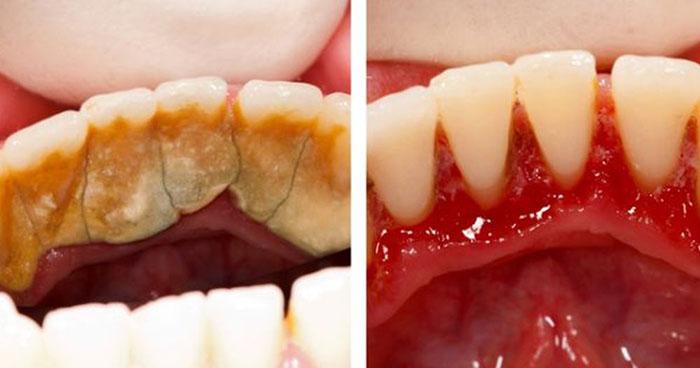 Классный способ избавления от зубного камня прямо у себя дома